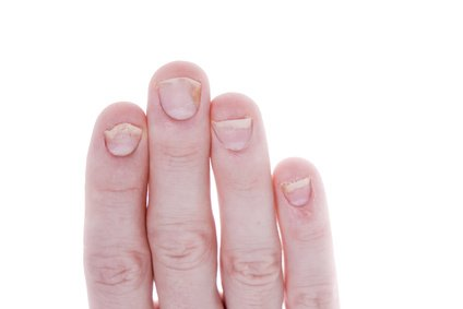 Fingernails affected by psoriasis